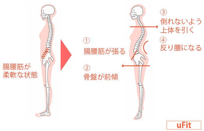 反り腰の改善